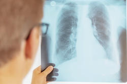 In cases of bacterial pneumonia, inflammation of the lung tissue can often be seen on patients' X-rays. However, research has yet to be done to see what happens in the lungs when they become infected with pathogens such as pneumococci.