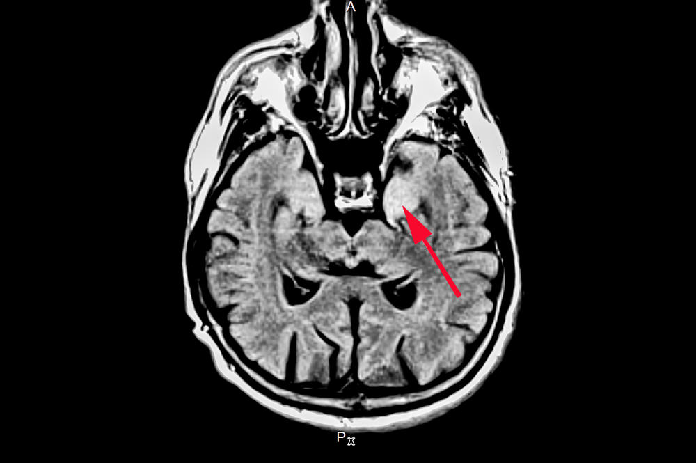 MRI image of a patient with autoimmune brain inflammation: in particular, parts of the temporal lobe (arrow) are especially and frequently affected by the inflammation.